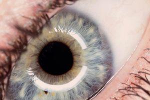 Ellie full eye