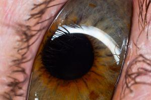 Gabby eye