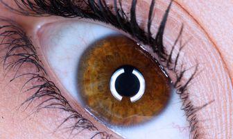 Millie eye large