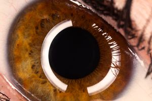 Millie eye