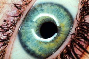 Rosie s eye