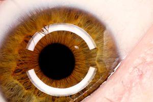 Toms eye