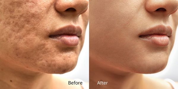 Skin Retouching Service from Tradexcel Graphics
